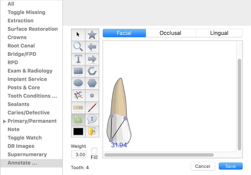 Charting Menu - Annotate – MacPractice HelpDesk